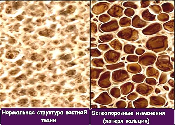 osteoporoza.jpg66